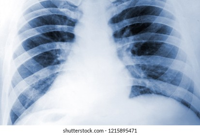 X Ray or Fluorogram of Human Thorax   - Medical Tuberculosis Diagnostic Test - Xray, MRI, CT Scan Film