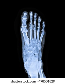 x ray of foot front view.