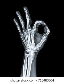 x ray of hand.