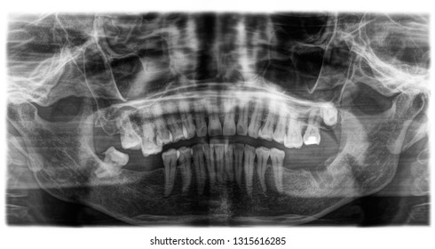 X ray of human mouth with teeth bones in black and white. Detail of panoramic facial x-ray image