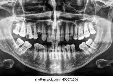 X ray of human mouth with teeth bones in black and white