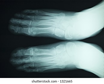 x ray image of a couple of male feet showhing fingers and arthritis