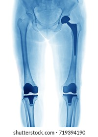 X Ray image of hip replacement and knee replacement isolated on white background