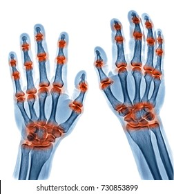 x ray image of multible joint inflammation in both hands caused by Gout arthritis, Rheumatoid arthritis isolated on white background