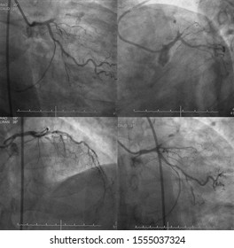 x ray image perform chronic total occlusion (CTO) of left anterior descending artery (LAD)