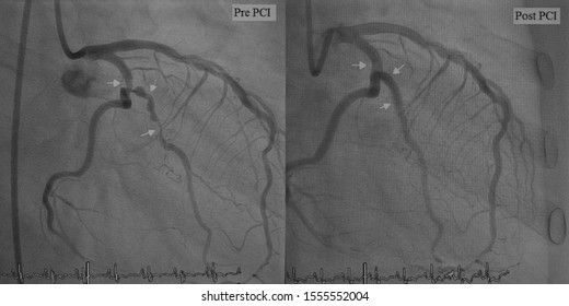 X ray image perform left circumflex artery (LCx) before and after percutaneous coronary intervention (PCI)