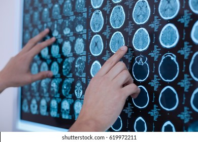 X ray images of human brain being put on the whiteboard