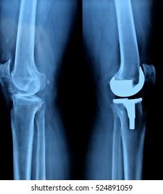 x- ray of knee