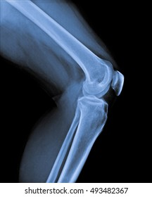 x ray of knee joint side view.