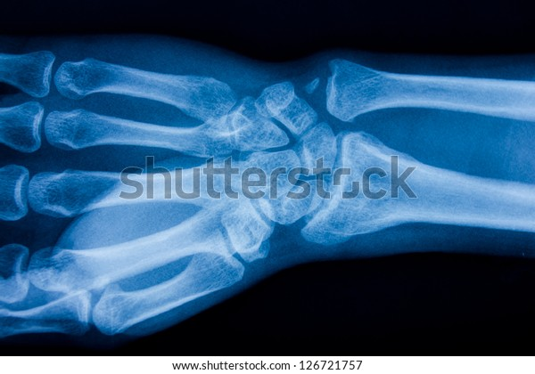 x ray of male hand
