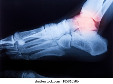X ray MRI of Foot and Knee pain