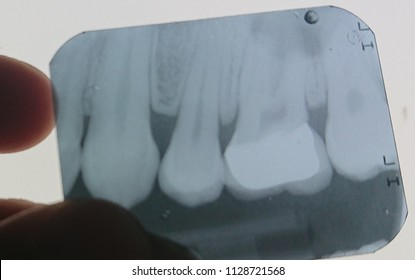 x ray of periapical abscess of molar teeth. there is well circumscribed shadow at dental root
