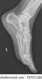 x ray radiograph of human female feet bones (L means left side)