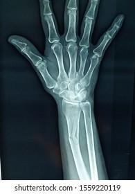 X ray of radius bone fracture of forearm.