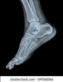 x ray of right foot