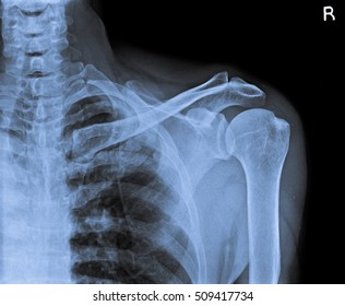 x ray of shoulder joint.