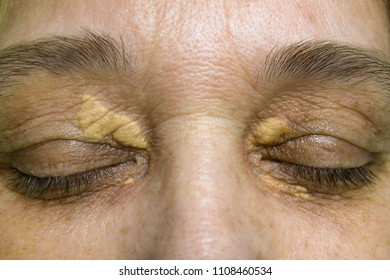 Xanthelasma on the skin of the eyelids