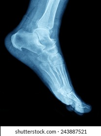 xray of ankle