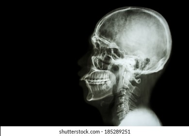 X-ray asian skull and blank area at left side