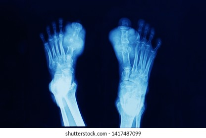 x-ray of both foot showing bone erosion and uric acid crystal deposition at great toe or hallux. The patient has chronic hyperuricemia and tophaceous gout. Gout attack.
