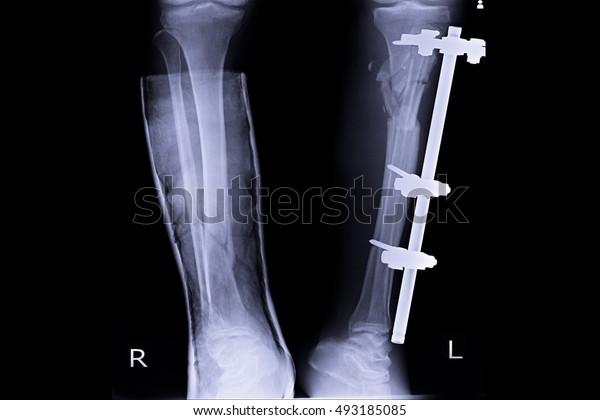 xray both leg and show external fixation left leg