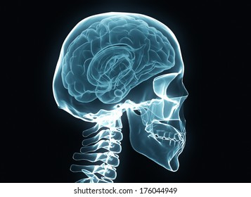 X-ray brain and skeleton isolated on black