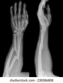 Broken Arm Xray Images Stock Photos Amp Vectors Shutterstock