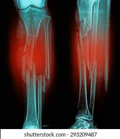 X-ray of broken leg