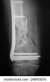 X-ray of the broken leg / Many others X-ray images in my portfolio.
