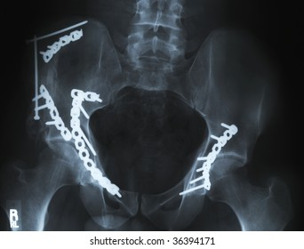 An xray of a broken pelvis/hip with metal pins holding it together.