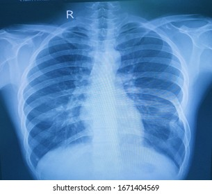 X-ray chest No pulmonary infiltration.Boht costrophenic angles are aharp.Normal heart size,vasculature and bony thorax except bifid left rib7.Impression healthy chest.Medical image concept.