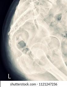 X-ray Coccyx Human