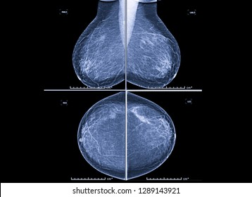 X-ray Digital Mammogram both side CC view and MLO . mammography or breast scan for Breast cancer showing  a benign calcification in left breast without evidence of malignancy (BIRADS2).