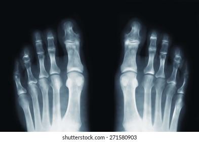X Ray Feet