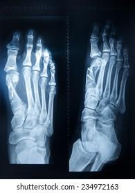 X-ray feet with metal sticks