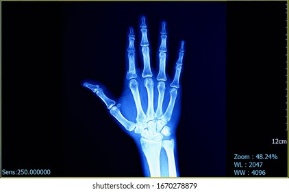 X-Ray film of human hand