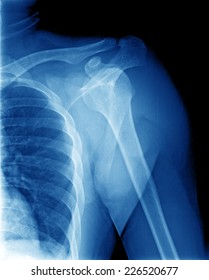 X-ray film of shoulder