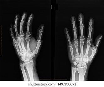 X-ray film shows an arm in an arm fractured after a traffic accident. Patients who are treated with internal opening reduction (ORIF) with sheets and screws. Medical imaging concepts