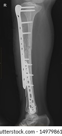 X-ray film of the x-ray shows leg fractures after a traffic accident. Patients who are treated with internal opening reduction (ORIF) with sheets and screws. Medical imaging concepts