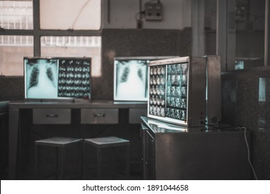 X-ray film viewer room with Diagnosis, treatment planning