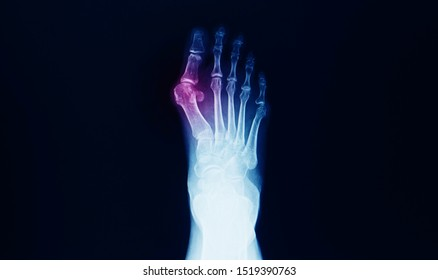x-ray of foot and ankle showing hallux valgus or bunion. The patient has pain at big toe and deformity. Surgical correction and reconstruction is needed.