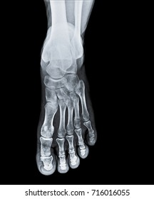 X-ray of foot front view with fractured toe bone.