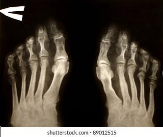X-ray foot man