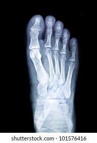 x-ray of foot on black background