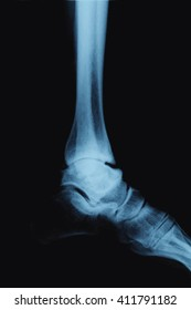 X-ray foot on a black background . Osteoarthritis of the ankle 3 degrees.