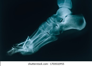 X-ray of the foot. A real x-ray of the human foot on the side. At the doctor's appointment, hospital.