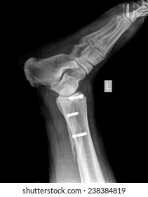 x-ray of foot with screw