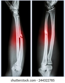 X-ray forearm (  front , side ) : Comminuted fracture shaft of ulnar bone ( forearm bone )