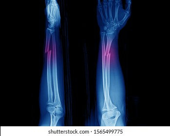 X-ray of forearm and wrist showing closed fracture at distal part of diaphysis of radius with distal radioulnar joint or DRUJ dislocation. The fracture is also called Galeazzi fracture.