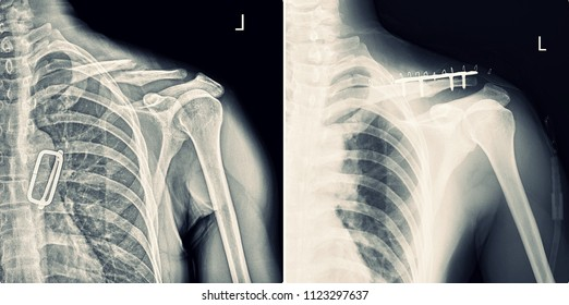 X-ray Fracture Clavicle before and after treatment.